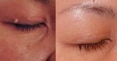 cryopen fibroom oog
