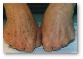 cryopen handen pigment