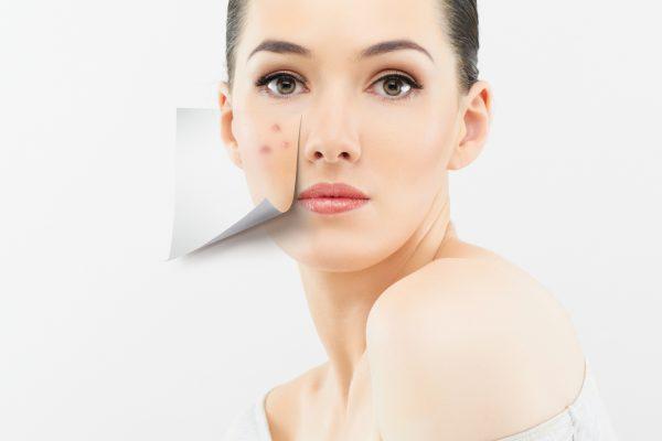 Vrouw acne